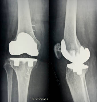 Picture of knees with replacement joints.