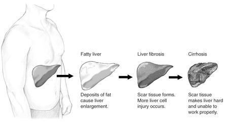 Different Stages of Liver Damage. Image by Counticr, en. Wikipedia