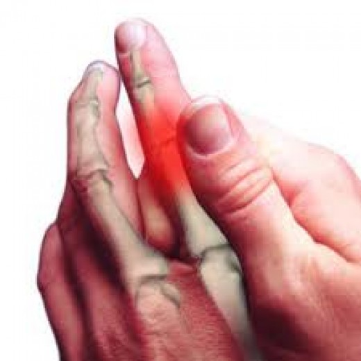 Peripheral neuropathy of hand nerves