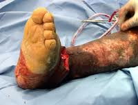 Diabetic foot neuropathy