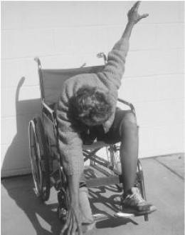 Catatonic schizophrenia - sometimes rigid sometimes extremely flexible body movements.