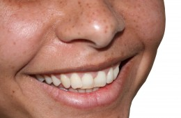 Want to know how to whiten teeth?  You can go the home technique or the natural technique.