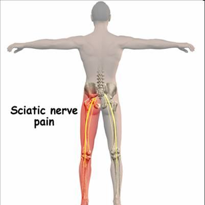 Where the sciatic nerve affects