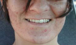 The Cheap and Effective Way I Cured My Acne