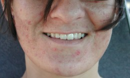 """My acne on a """"good day"""" before I found my cure."""