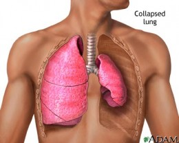A blockage can cause atelectasis, which prevents the lung from expanding.