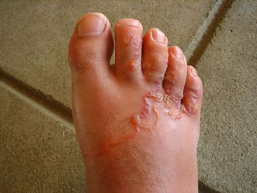 In festation of hookworms. Hookworms infestation comes from walking barefoot in infected areas. The worms burrow into the sole of the foot then work their way to the lungs and intestines where they live.