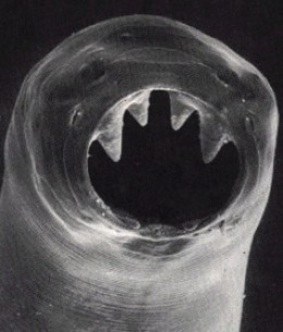 Hookworm upclose and personal. Imagine this ugly thing living inside of you, eating you and sucking your blood!