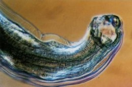 Another up close and personal look at an ugly hookworm. These worms will also cause intense itching!
