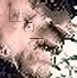 Same scars...coincidence?  Enhanced pixels of the skin DO NOT LIE--scars! All of them are there!