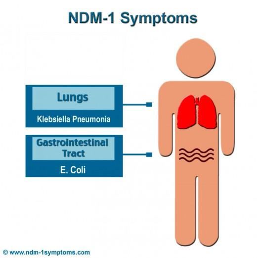 NDM 1 Symptoms 2011