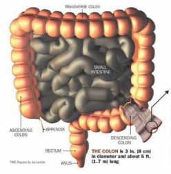 Colorectal Cancer has New Treatments