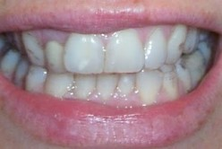 A patient wearing Invisible Braces
