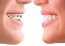 Invisible braces vs Metal braces
