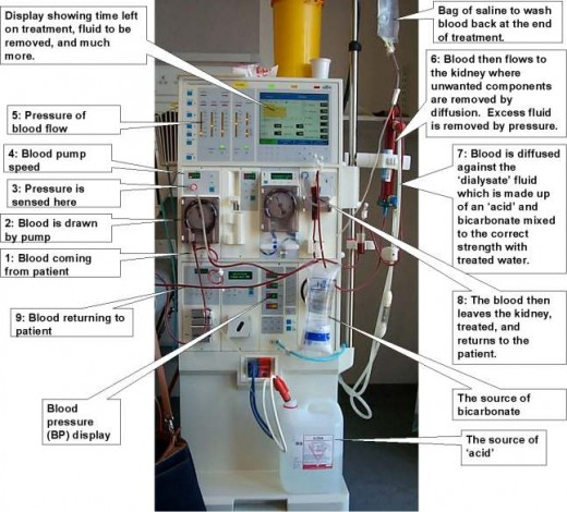 The DIALYSIS MACHINE and its procedure (Photo courtesy of http://www.statcrux.co.uk/)