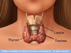 Thyroidectomy and Weight Gain