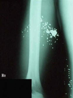 X-ray of Glaser Wound