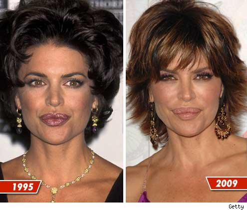 These two pictures are taken 14 years apart and obviously she is an attractive women even is she is unhappy with the surgeries.
