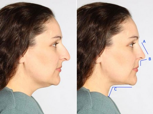 Photo Courtesy of Zimbio a post you own nose job site