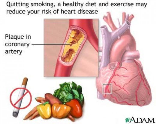 Heart disease lifestyle changes