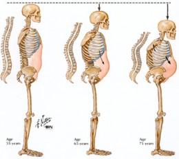 Progression of breakage of vertebrae