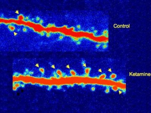 Neuronal spines, budding connections between brain cells, or synapses, sprouted in rats within hours of receiving ketamine (arrows). By contrast, fewer spines developed on neurons of control rats that didn't receive the drug. The boost in neuronal co