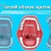 tonsilstoneremedy profile image