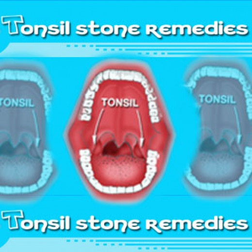 Tonsil Stone Home Remedies