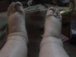 On my feet too much, but it would have been much worse without the compression hose! I remember all the days I taught school with no therapy. I came home and cried many times from pain and swelling.