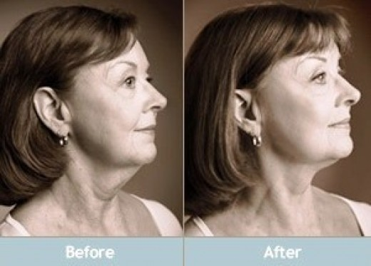 Natural Face Lift Before & After Look