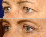 Blepharoplasty smoothes over the wrinkles, and apparently somehow gives you a better tan.