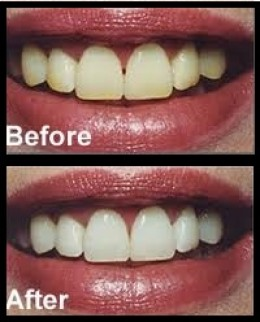 teeth whitening tips, before and after
