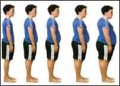 Obesity:Causes,Effects And Treatment