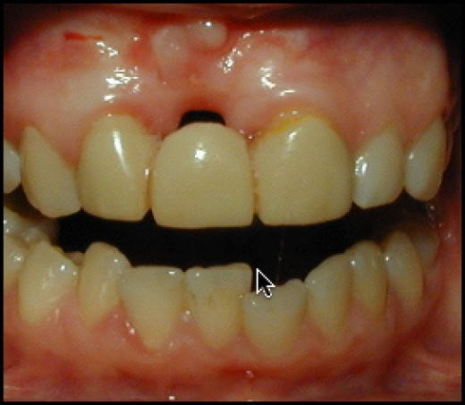 Bridge over a missing upper front tooth. Note the bone and gum tissue loss