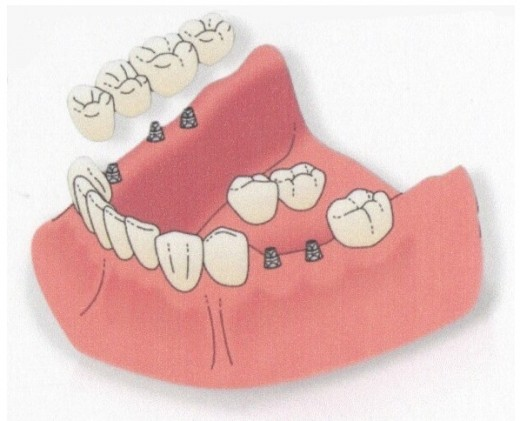 Implants can be used for single or multiple teeth replacement