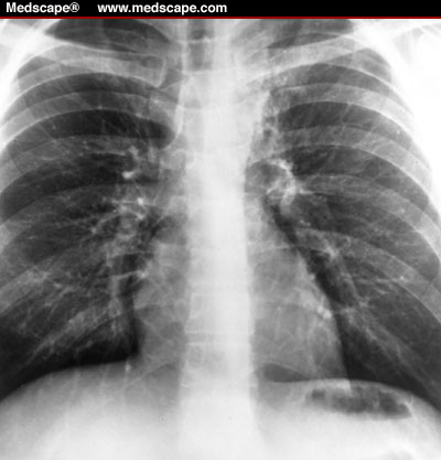 show an ill-defined opacity simulating lung cancer.