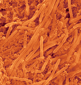 Biofilm formations may include such oral bacterium as antinomyces viscousus, an anaerobic bacterium that is part of the human oral flora. The rod shaped bacteria occur around the teeth, gums and throat in healthy people. Species of this bacterium can