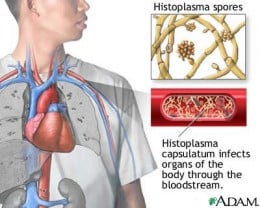 Histoplasmosis is a fungal infection caused by inhaling dust from spore-infected bird droppings. In the disseminated form, infection spreads throughout the body from the lungs. The death rate is fairly high for people with untreated widespread (disse