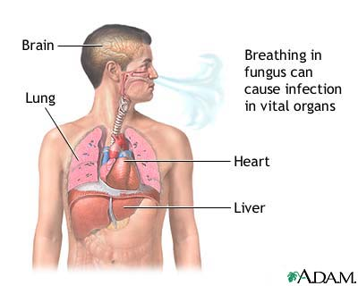 Disseminated coccidioidomycosis is caused by breathing in the spores of a fungus found in desert regions. The infection spreads throughout the body and is especially common in immunosuppressed people. Antifungals may help but the death rate is very h