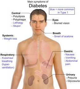 Major potential symptoms of diabetes.