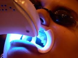 Professional Teeth Whitening Techniques