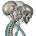 Whiplash Claims and Car Insurance Compensation Amounts - What damages can you recover from a neck injury