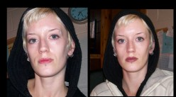 Juvederm for non surgical nose job and mouth lines