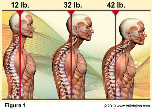 Photo of the human head and how posture can change the weight of the human head and cause back pain