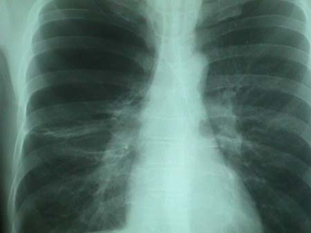 These radiographs of a patient with chronic obstructive pulmonary disease (COPD) reveal pulmonary hyperinflation. In the PA projection above the diaphragms are at the level of the eleventh posterior ribs and appear flat. The lateral radiograph below