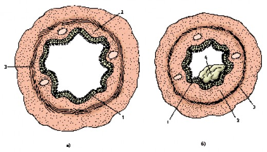 Bronchial lumen view in healthy (a) and asthmatic (b) persons: 1  mucosa, 2  submucosa and 3  smooth muscles; 4  a mucous plug