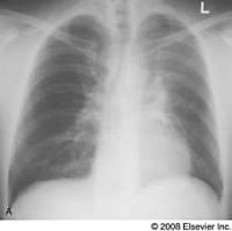Posteroanterior chest radiograph shows poorly defined increased opacity of the left hemithorax associated with superior displacement of the left hilum and elevation of the left hemidiaphragm characteristic of left upper lobe atelectasis. The patient