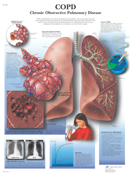 COPD Chronic Obstructive Pulmonary Disease This colorful anatomical chart displays the signs symptoms and other useful