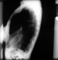 An emphysematous lung shows increased anteroposterior (AP) diameter, increased retrosternal airspace, and flattened diaphragms on lateral chest radiograph.