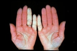 Aromatherapy in the treatment of Raynaud's phenomenon